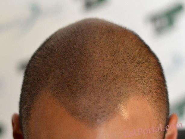 Татуаж на голове при алопеции у женщин